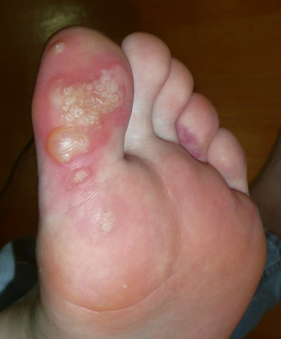 Blisters, warts and a bruise